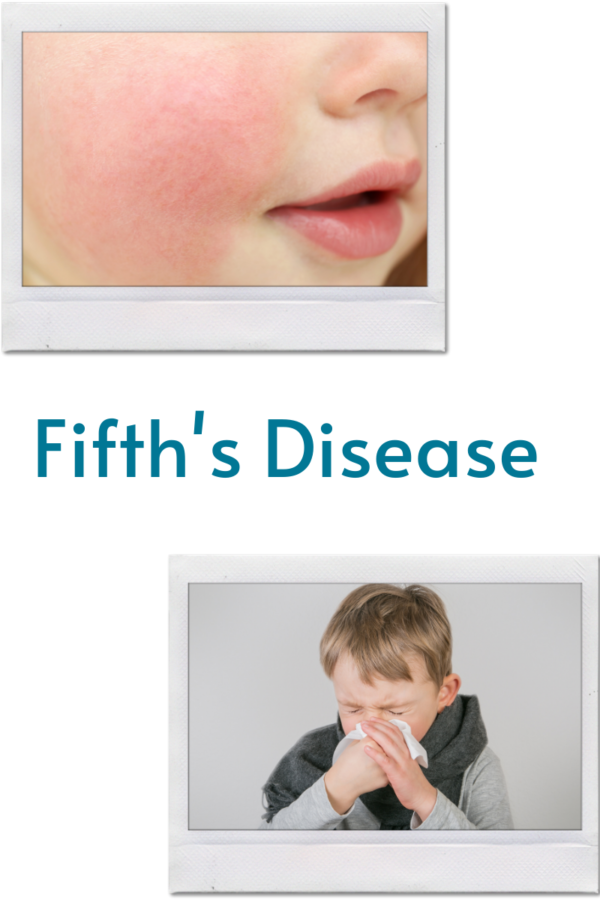 Hand, Foot, and Mouth Disease (1)